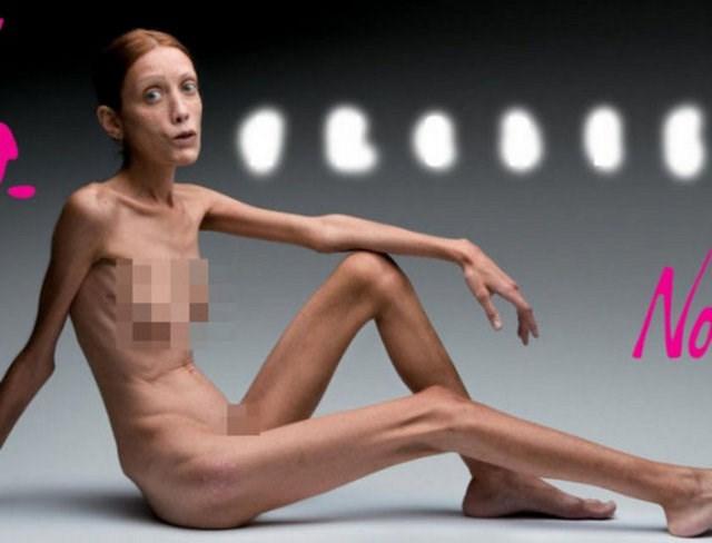 Анорексия в порно роликах170